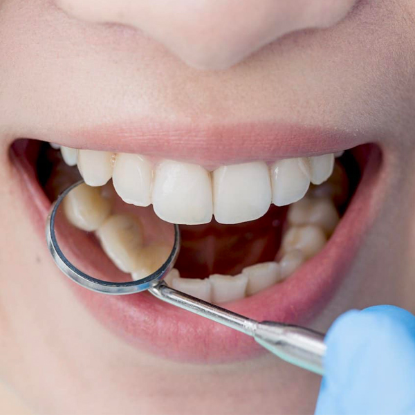 I rimedi naturali per eliminare il tartaro sui denti: come eliminare il tartaro, cosa fare per prevenirne la ricomparsa?